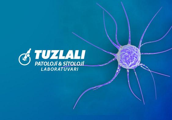 Tuzlalı Patoloji ve Sitoloji Laboratuvarı